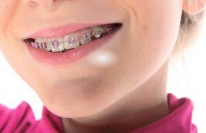вирівнювання зубів у дітей