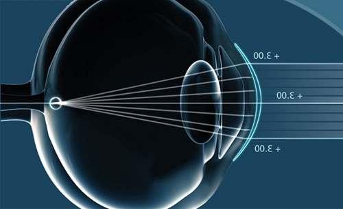 Лазерна корекція зору  як проводиться та скільки коштує  f2dce2ee170f0